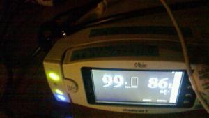 睡眠時無呼吸症候群の検査機器